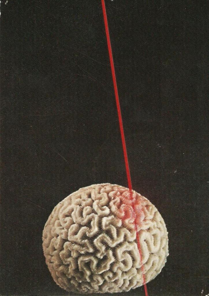 CFR Laser Hjärna